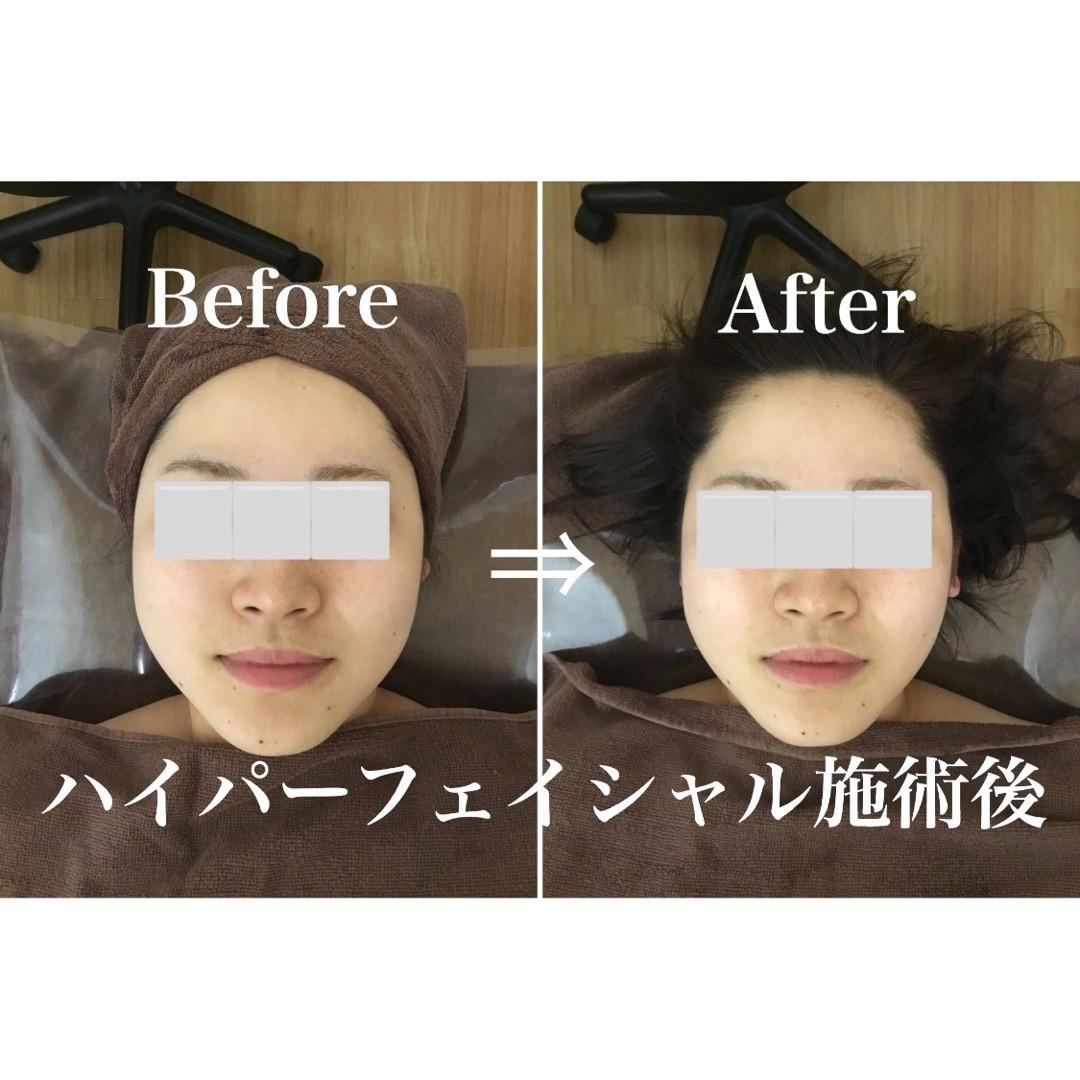 . 一回でこの変化️️ お顔の筋肉をほぐし、続けることでより変化が出てくれます浮腫みを減らしお顔のトーンを明るくしてくれます ハイパーナイフフェイシャルの体験をお待ちしております🏻♀️