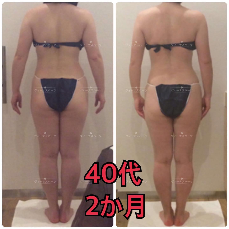 40代2カ月の効果です️️  ️足の隙間 ️お背中小さくなった  施術内容  ハイパーナイフ  ハイパーシェイプ 筋膜リリース